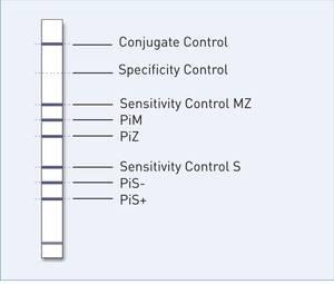 reaction zones GenoType AAT