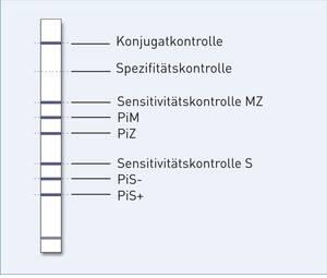 Streifengrafik GenoType AAT