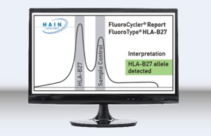 Display of result FluoroType® HLA-B27