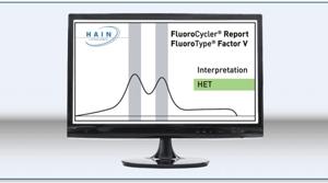 Display of result FluoroType® Factor V