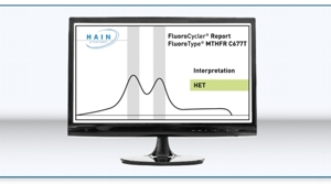 Display of result FluoroType® MTHFR C677T