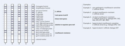 reaction zone GenoType CDiff