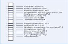 micro-IDent®plus 11