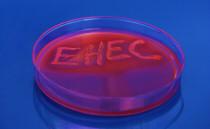 http://www.hain-lifescience.de/uploadfiles/image/produkte/mikrobiologie/ehec.jpg