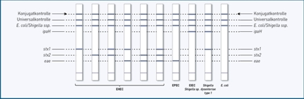 Streifengrafik GenoType® EHEC