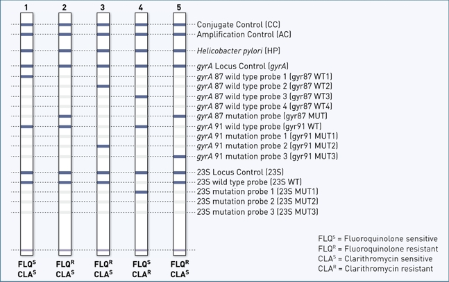Genotype Helicodr Detection Of Helicobacter Pylori And Its