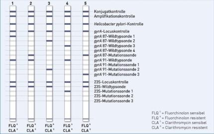 Streifengrafik GenoType HelicoDR