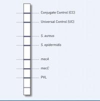 reaction zones GenoType MRSA