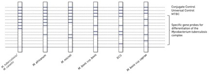 reaction zones GenoType MTBC