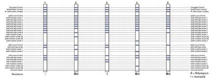 reaction zones GenoType MTBDRplus