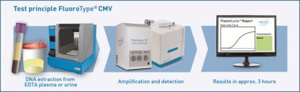 Testprinzip FluoroType® CMV